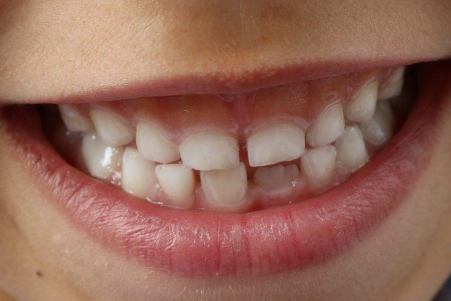 Kuidas hambahaiguseid ära tunda?