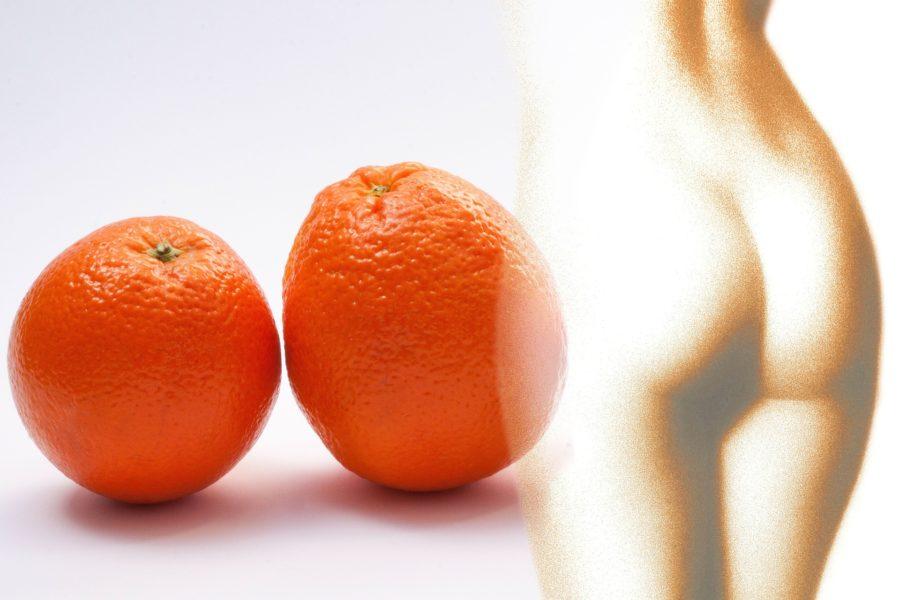 Kas tselluliidimassaaž aitab tselluliidist vabaneda?